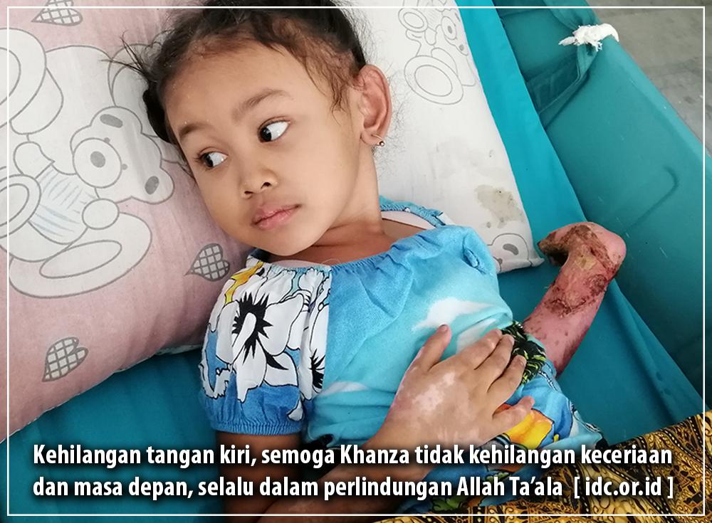 Santri TPQ Melepuh Terperosok Abu Panas, Tangannya Harus Diamputasi, Ayo Bantu..!!