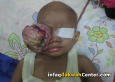 IDC Bantu Pengobatan Tumor Mata Ganas (Retinoblastoma)