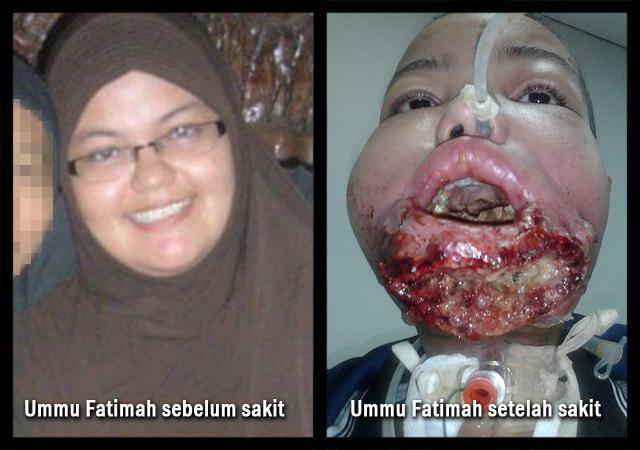 Derita Ummu Fatimah: Kanker Mulut Makin Parah, Ia Dicerai ...