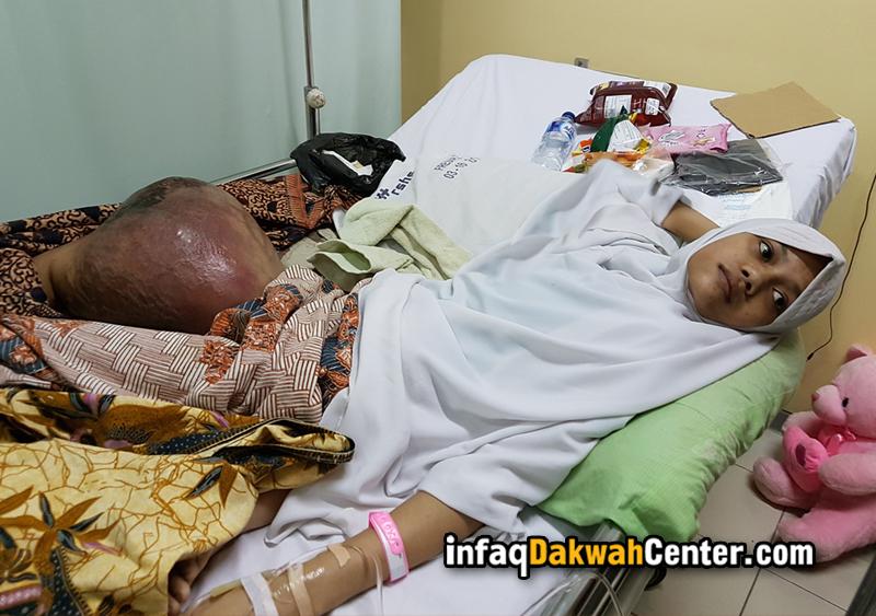 Gadis Remaja Ini Menderita Kanker Tulang yang Ganas, Harus ...